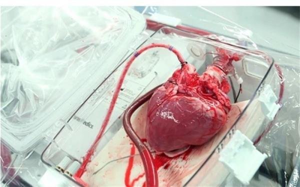 انجام موفقیت آمیز نخستین عمل پیوند قلب در خوزستان